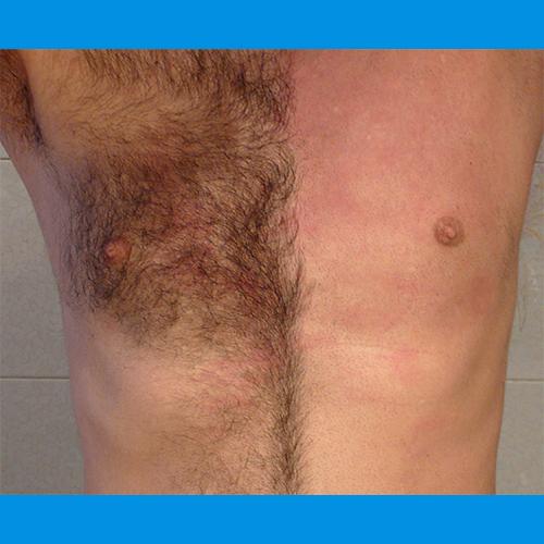 Laser Hair Removal Works Great For Men