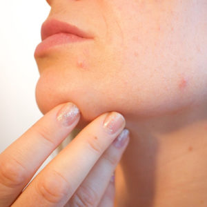 Laser Smooth Company_Home Remedies for Acne