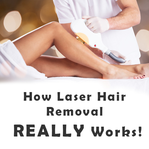 Laser Smooth Company_How Laser Hair Removal Really Works