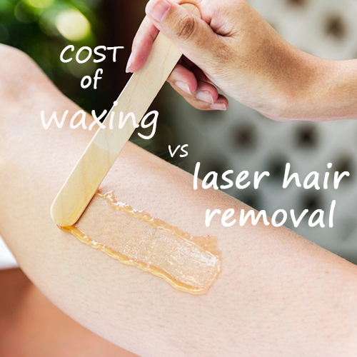 Laser Smooth Company_How Much Waxing Costs